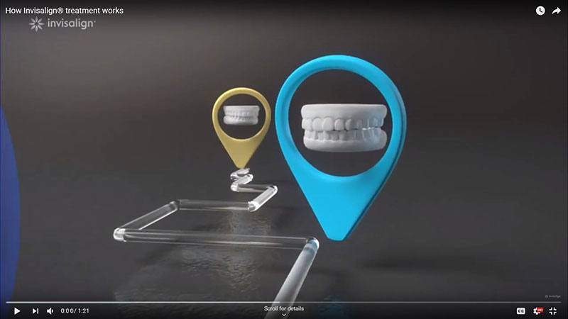 how invisalign works video link